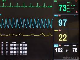 What Are The Different Types Of Vital Signs Charts
