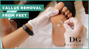 callus removal from feet of feet