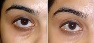 makeup to cover dark circles under eyes left without concealer right with concealer