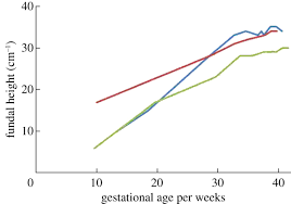 Estimation Of Gestational Age From Fundal Height A Solution