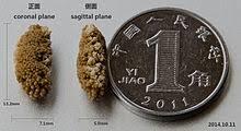 Kidney Stone Disease Wikipedia