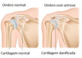 Artrose no ombro tem cura