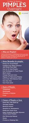Best 25+ Pimple face ideas on Pinterest   Acne remedies, Blemish ...