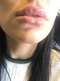 hardness 3 days after juvederm filler