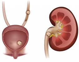 5 Must Known Kidney Stone Symptoms Tests And Treatments