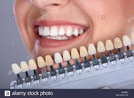 Dental Shade Stock Photos Dental Shade Stock Images Alamy