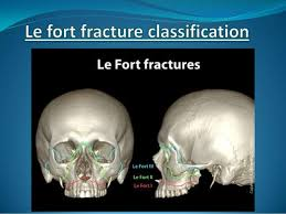 Le Fort Fracture Le Fort Fracture 2