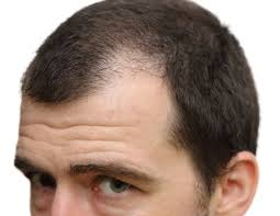 Male Pattern Boldness Delectable Are You At Risk For Male Pattern Baldness