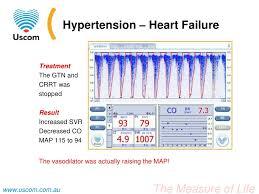 MNEMONIC FOR HYPERTENSION MANAGEMENT   THE NURSING CORNER Freiwillige Feuerwehr G  nthersleben     SlidePlayer    Hypertension Scribd    Pregnancy Induced Hypertension Case  Study