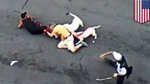 pitbull dog attacks man. Modren Man Pit Bulls Dogs Attack Bronx Man In Almost Fatal Which Rips Off His  Ear  TomoNews YouTube Inside Pitbull Dog Attacks Man L