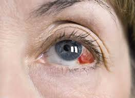 Image result for pecah pembuluh darah