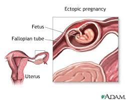 Scurgeri maronii fara menstruatie