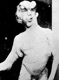 joseph merrick. Perfect Joseph The Elephant Man Joseph Merrick Developed A Physical Disorder That Caused  His Limbs To Grow Extremely Large When He Was Five Years Old To P