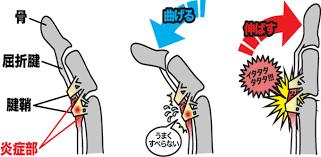 「腱鞘炎無料画像」の画像検索結果