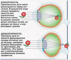 Нарушение зрения Близорукость и дальнозоркость