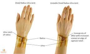 wrist arthritis treatment