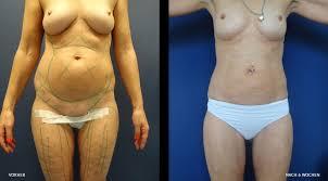 Fettabsaugung, diabetes Schönheitslexikon Schönheit