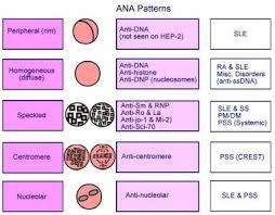 Antinuclear Antibody Reference Range Interpretation