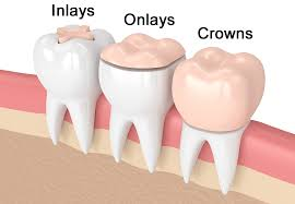 Dental Inlay Dental Inlay Tooth Restoration Procedure
