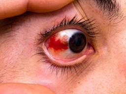 Red eyes: Home remedies and health tips