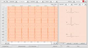 Resting Ecg Question How To Include Or Exclude Beats From The