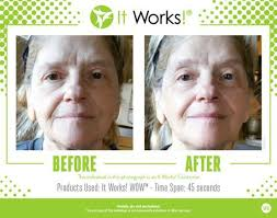 it works exfoliating peel before and after it works before after photos