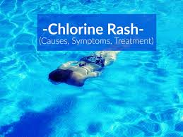 Chlorine Rash (Causes, Symptoms, Treatment) - The Healthy Apron