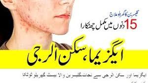 skin allergy ka ilaj in urdu Videos - ytube.tv