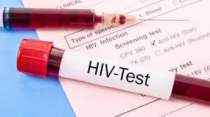 Xét nghiệm HIV trước 3 tháng