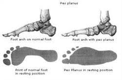 Pes Planus Flat Feet