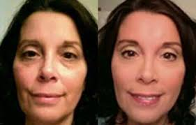 hide dark circles before after before after before after