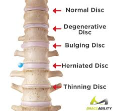pain relief for slipped disc in neck