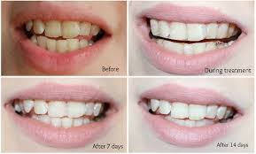 Teeth As White As Snow Smile Lab Advanced Teeth Whitening
