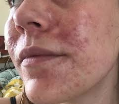 candida infection of the skin