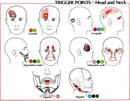 Trigger Point Referral Patterns Balance In Motion Bodywork