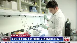 Image result for alzheimer's blood test