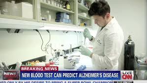 Image result for alzheimer's blood test