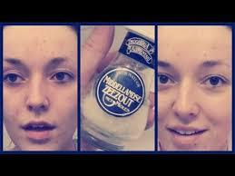 zeezout acne