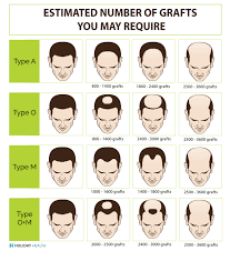 hair transplant how it works hair transplant cost international price comparison guide for hair