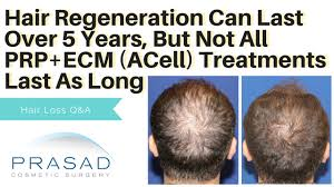 ecm prp for hair loss why not all last as long as hair regeneration s 5 years