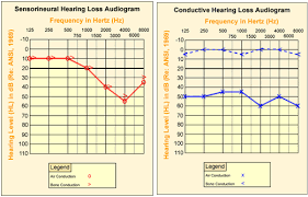 Normal Hearing Range Age Chart Osha Technical Manual Otm Section Iii Chapter 5 Noise