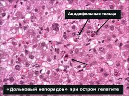 УЗИ печени Анализ крови на гепатит в с тверь