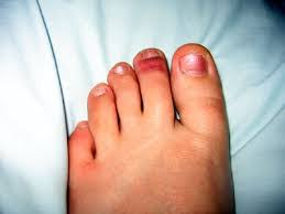 injuries to the nail may lead to a subungual hematoma which causes blood to collect under your injured toenail this can delay growth of the toenail and be