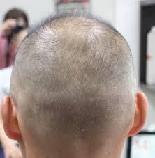 薄毛でお悩みの貴方に髪の多い人は見ないで下さい 大阪府