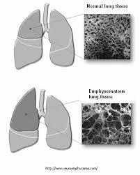 Valves Endobronchiales Dans Le Traitement De L'emphysème Pulmonaire ...
