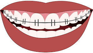 surviving your first week with braces