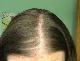 te hairloss low ferritin level best