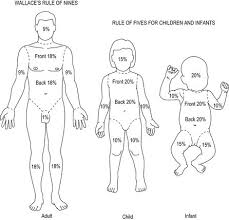 Rule Of 9 S For Burns Chart Burns Clinical Gate