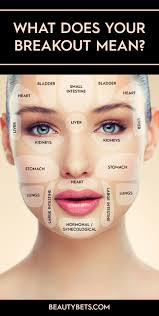 Acne Face Chart What Does Your Skin Say About You Beauty Bets