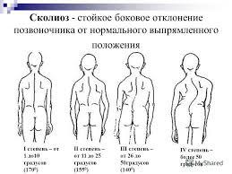 Презентация на тему Нарушения осанки у школьников Выполнила  5 Сколиоз стойкое